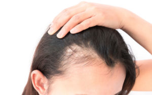 hair loss experts at hairven hair salons in nottingham
